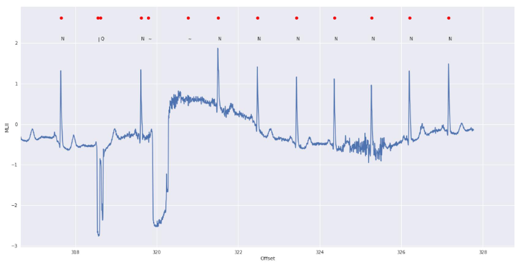Machine Learning for ECG Classification – Koen Aerts